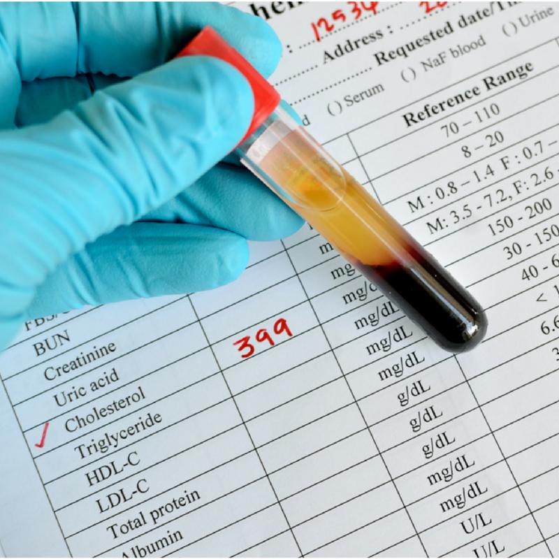 Is cholesterol a risk factor for heart disease in women?